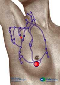 Lo sviluppo della senologia chirurgica moderna